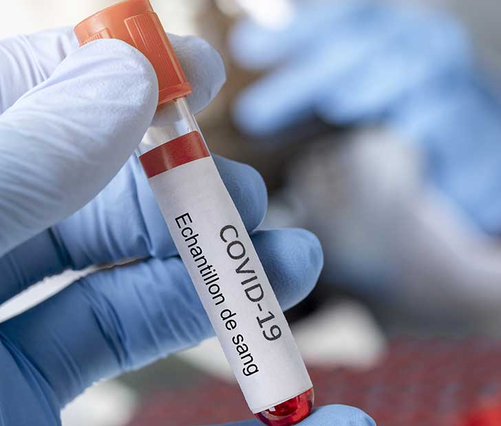 La Covid-19 ne doit pas empêcher de soigner les autres pathologies